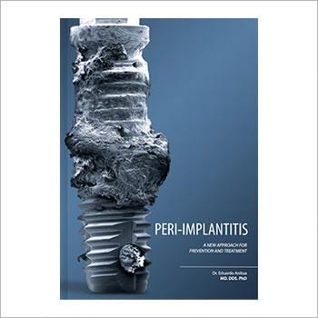 BTI book - Peri-implantitis
